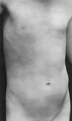 Edward Weston - Torso of Neil, 1925